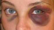 The Black Eyes And Effective Treatment of Black Eyes