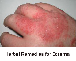Herbal Remedies For Eczema Pioneer Thinking