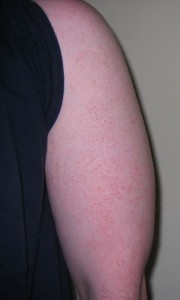 Treatment for Keratosis Pilaris