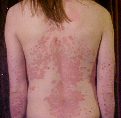 How to Naturally Treat Your Psoriasis