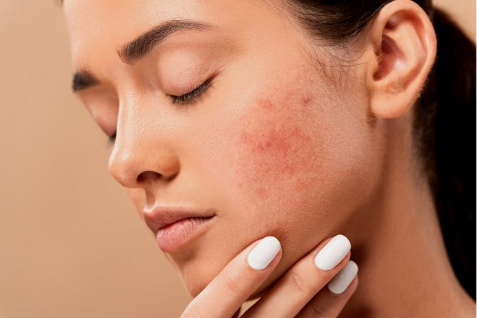 Warning Stress Can Be Hazardous to Your Skin!